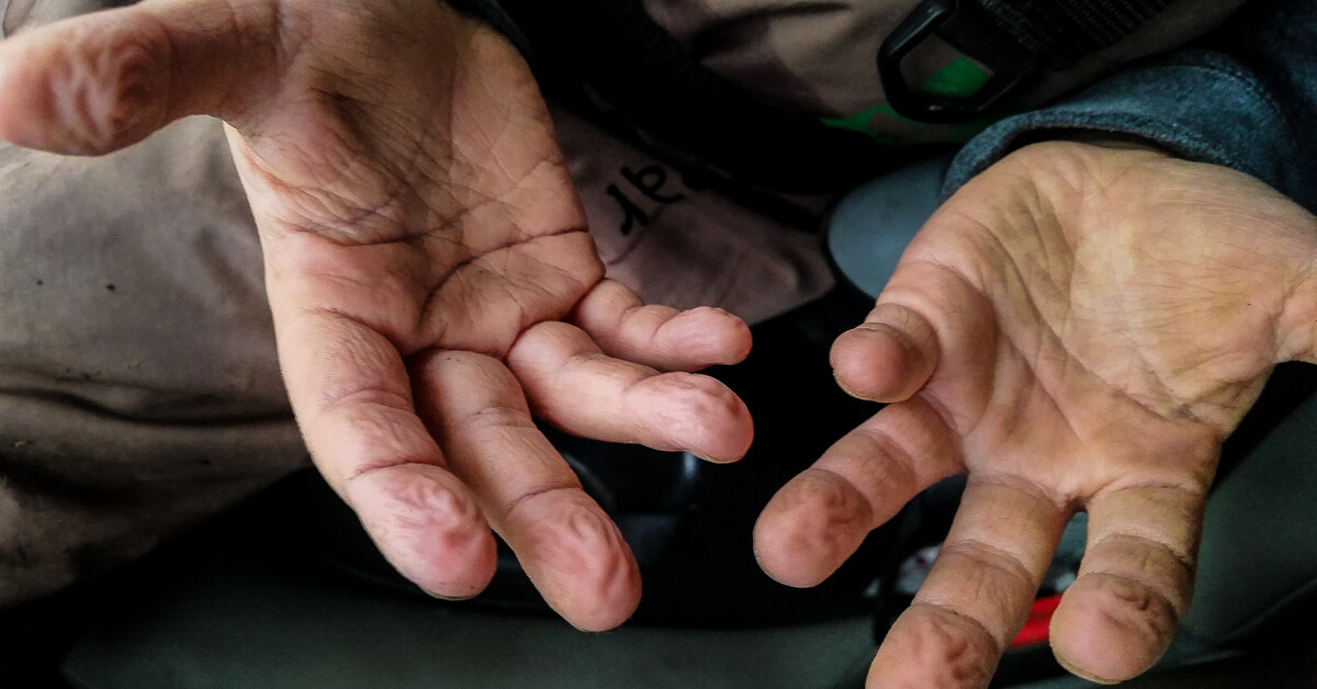 Troutbitten Hands Boy